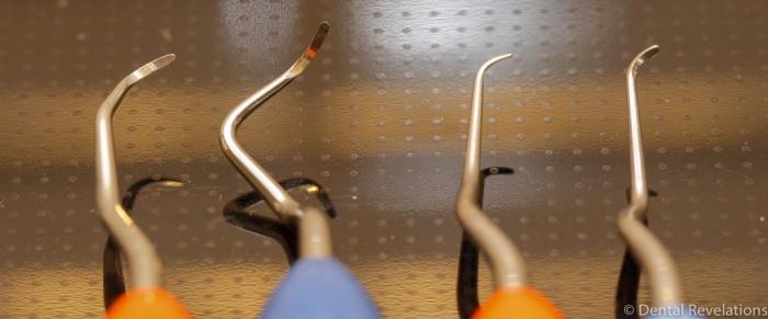 Dental Revelations Blog-3916